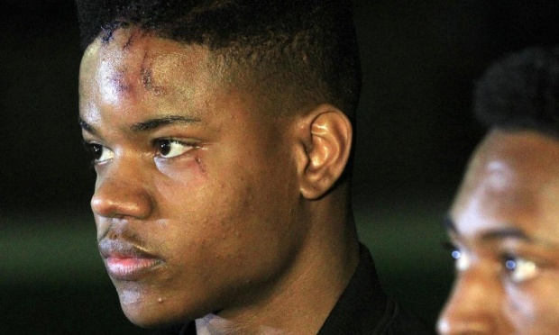 martese johnson #notjustuva